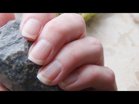 Die Behandlung mikossist gribok der Nägel