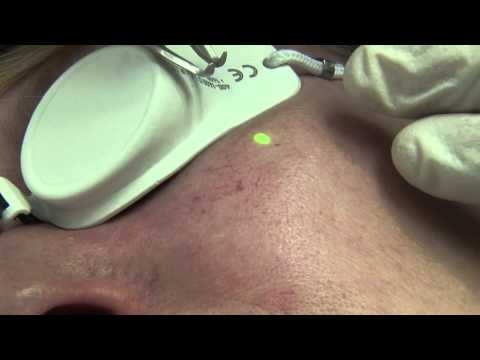 Die Behandlung der Thrombophlebitis von den Äpfeln
