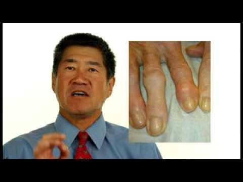 Schultergelenk Verletzung