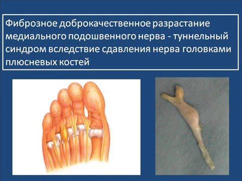 Koślawe kolana deformacja w dzieci w wieku 10 lat w leczeniu