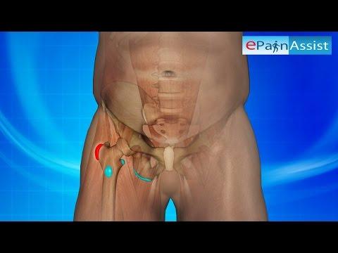 Schwere Rückenschmerzen auf der linken Seite