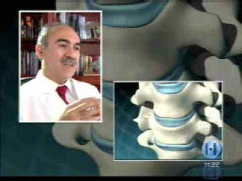 Se è possibile curare la sporgenza del nuoto colonna cervicale