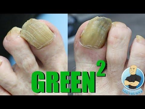 Durere bruscă în articulațiile degetelor de la picioare