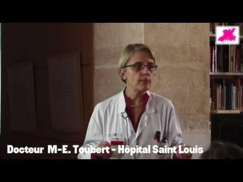 Lacuponcture au traitement de la varicosité