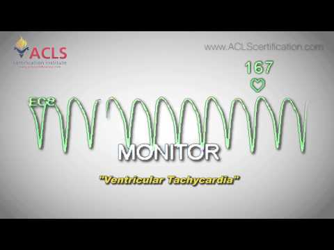 Video Ventricular Tachycardia by ACLS Certification Institute