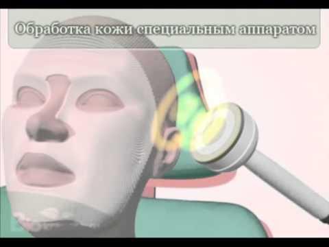 Какие средства эффективны от морщин под глазами