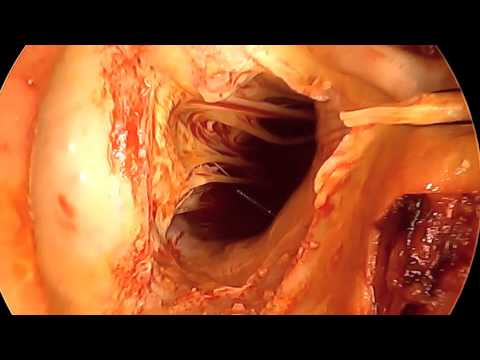 Stentless Aortic Valve Replacement