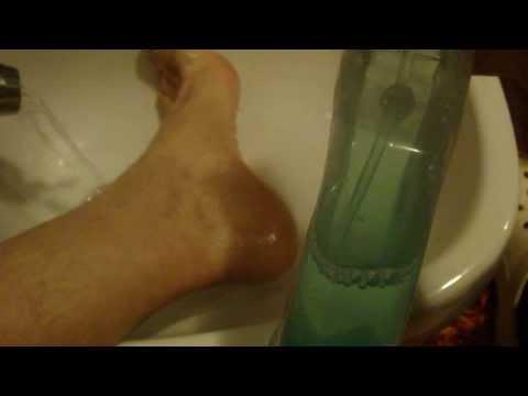 Che trattare un fungo di unghie