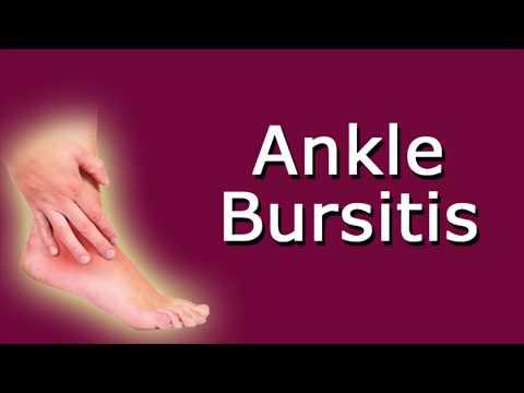 A kéz ízületeinek rheumatoid arthritis