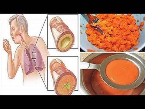 Τροφικών ελκών στο διαβήτη θεραπεία της