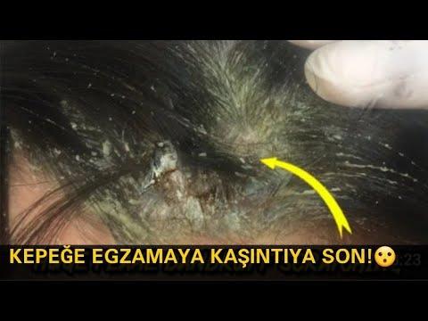 Paraziták az arcon, mint hogy kezeljék