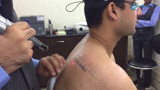 Permanent Tattoo Removal With Laser at Dermaworld Skin Clinics