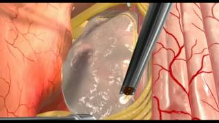 Spine Tumour SurgeryVideo In India