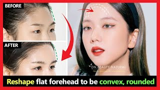 How to Reshape flat forehead to be convex, rounded | Fix flat face to the oval face naturally.