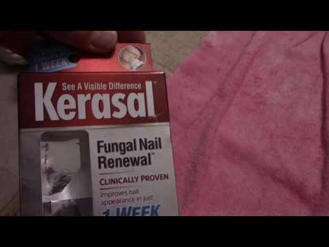 Kuko halamang-singaw sintomas