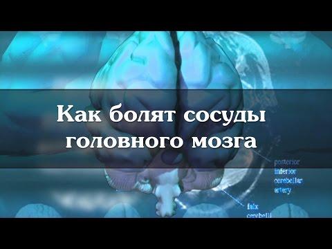 Una pressione del sangue umano è considerato normale