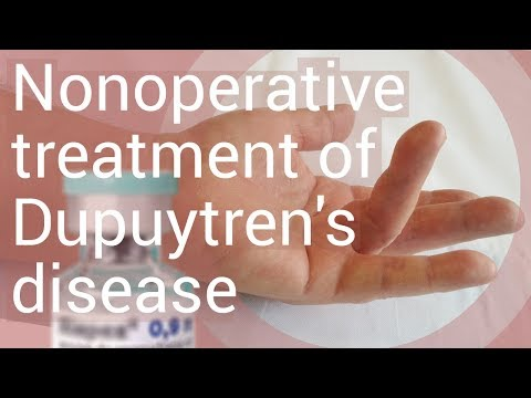Metode de tratare a artrozei osoase radiale