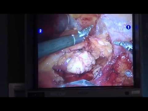 Prostatitis Video Foto