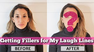 Getting Fillers for My Laugh Lines (Nasolabial Folds) - BEFORE, DURING & AFTER