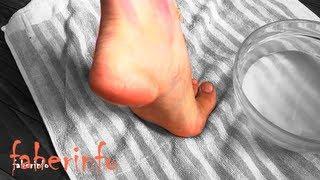 Смотреть онлайн Лечение глубоких трещин на пятках за 3 дня