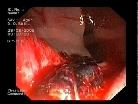 Endoscopic Approach To Bleeding From Rectum After A Prostatic Needle Biopsy