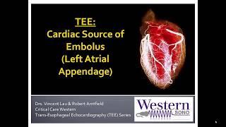 Transesophageal Echocardiography : Left Atrial Appendage Thrombus