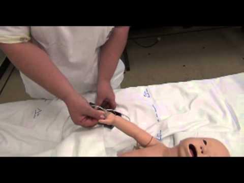 Preparazione di un aumento della pressione sanguigna in infarto miocardico