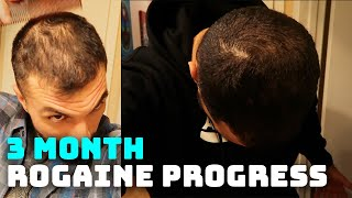 3 Month Rogaine Results and Progress (Minoxidil)