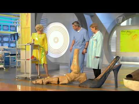 Вывих голеностопного сустава. Как его предотвратить
