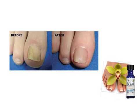 Die mechanische Beschädigung des Nagels die Behandlung
