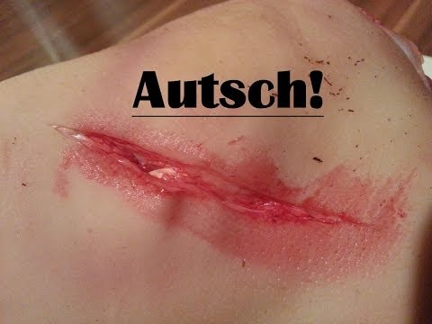 Urban Survival - Alternative Wundbehandlung [GERMAN - HD!]
