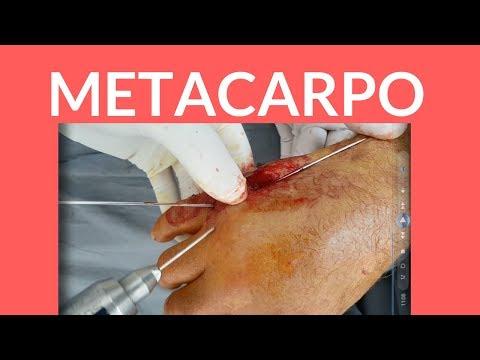 Come rimuovere il dolore della colonna vertebrale cervicale ernie