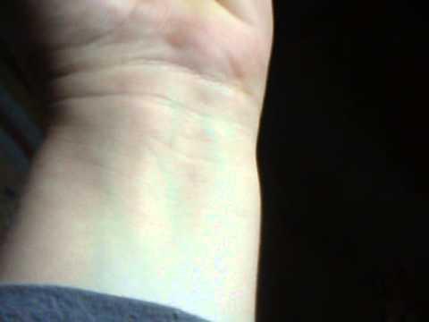 La complication de la maladie variqueuse la phlébite