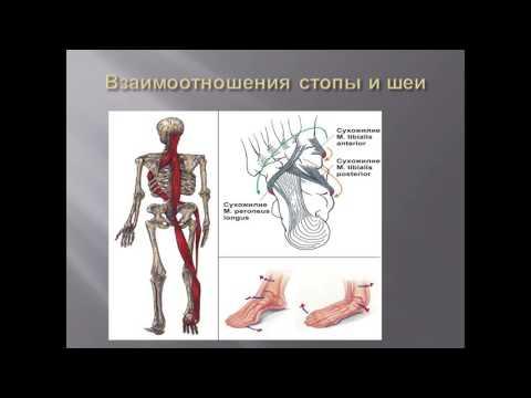 «Болевой синдром, развившийся на фоне энтезопатии при пяточной шпоре у спортсменов» В. А. Фролов