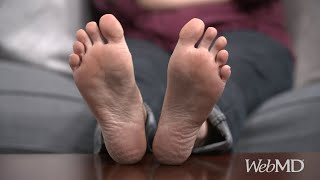 How to Treat Cracked Heels | WebMD