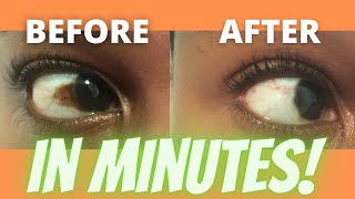 How to get rid of brown spot on eye Discolouration| Pigment | Freckle| Pterygium| Conjunctival Nevus