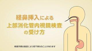 「経鼻挿入による上部消化管内視鏡検査の受け方」オリンパス「おなかの健康ドットコム」