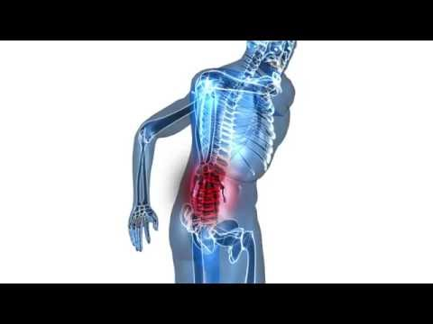 Back Pain Linked to Knee Pain