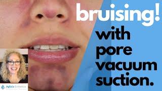 PORE VACUUM SUCTION | BRUISING IF NOT USED PROPERLY! |