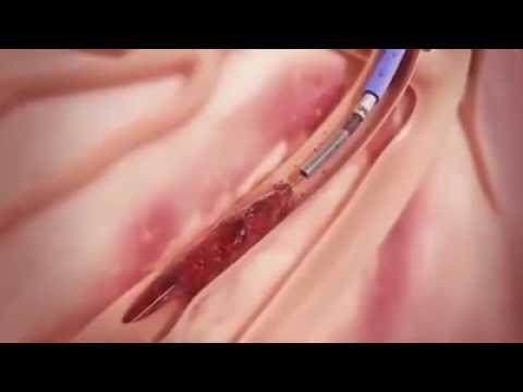Perangkat untuk pengobatan prostatitis dan impotensi