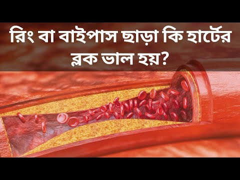 রিং বা বাইপাস ছাড়া কি হার্টের ব্লক ভাল হয়? || HealthMen || Treatment of Atherosclerosis.