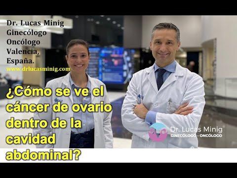 Cancer de prostata minsal