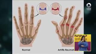 Diálogos en confianza (Salud) - Manejo integral de las lesiones musculoesqueléticas