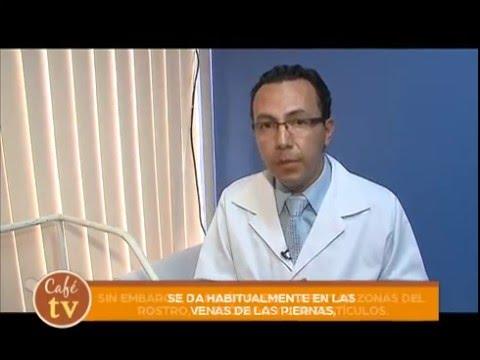 La laparoscopie des veines sur les pieds