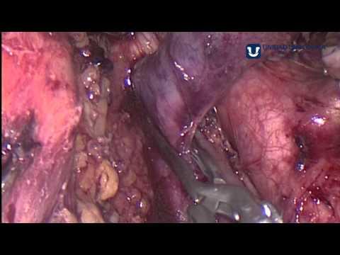 Operazioni a Irkutsk su varicosity il laser