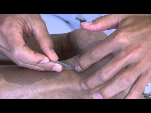 Che anestetizzare il dolore grave in un dorso