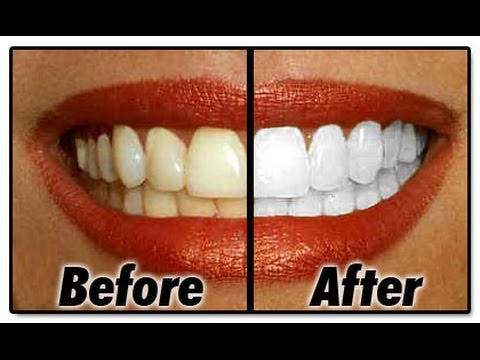 Φυσικά λευκά δόντια στο σπίτι