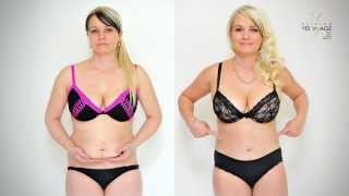 TRANSFORMATION: Abdominoplasty - tummy tuck