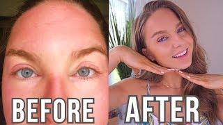 HOW I HEALED MY SUNBURN IN 2 DAYS   SEVERELY SUN BURNT & SWOLLEN FACE  // HOW TO HEAL SUNBURN FAST