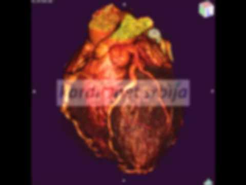 Kaip greitai išgydyti hipertenziją namuose